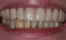 Dentures Patient 45793 - After