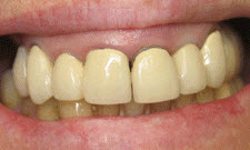 Dentures Patient 45793 - Before