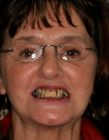 Dentures Patient 60251 - Before