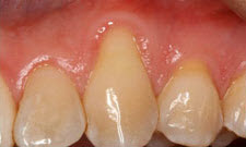 Gum Grafting Patient 44421 - Before