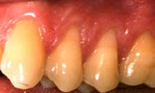 Gum Grafting Patient 68948 - Before