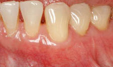Gum Grafting Patient 70539 - After