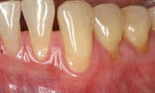 Gum Grafting Patient 70539 - Before