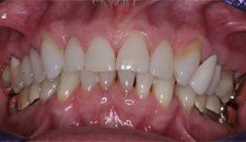 KoR Whitening Patient 38882 - After