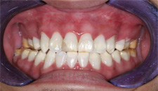 KoR Whitening Patient 56812 - After