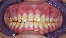 KoR Whitening Patient 56812 - Before