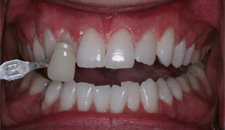 KoR Whitening Patient 73462 - After