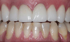 Porcelain Crowns Patient 12278 - After
