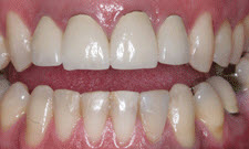 Porcelain Crowns Patient 12278 - Before