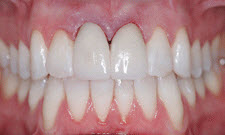 Porcelain Crowns Patient 34630 - After