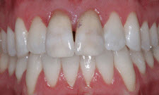 Porcelain Crowns Patient 34630 - Before