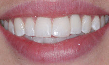 Porcelain Crowns Patient 37030 - After