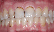 Porcelain Crowns Patient 57027 - Before