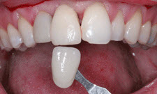 Porcelain Crowns Patient 69036 - Before