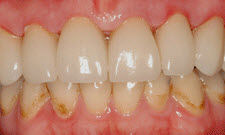 Porcelain Crowns Patient 74094 - After