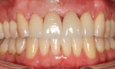 Porcelain Crowns Patient 79559 - After