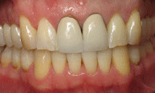 Porcelain Crowns Patient 79559 - Before