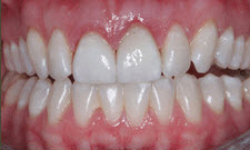 Porcelain Crowns Patient 97497 - After