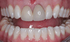 Porcelain Crowns Patient 97497 - Before