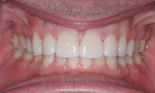 Porcelain Veneers Patient 21031 - After