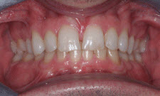 Porcelain Veneers Patient 21031 - Before