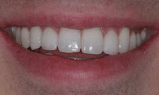 Porcelain Veneers Patient 24267 - After