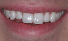 Porcelain Veneers Patient 24267 - Before