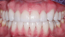 Porcelain Veneers Patient 35603 - After