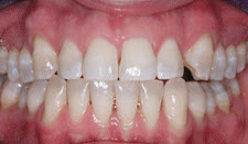 Porcelain Veneers Patient 35603 - Before