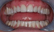 Porcelain Veneers Patient 45167 - After