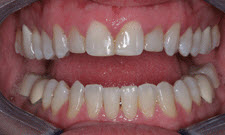 Porcelain Veneers Patient 45167 - Before