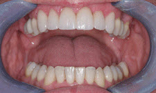 Porcelain Veneers Patient 67989 - After