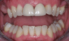 Porcelain Veneers Patient 67989 - Before