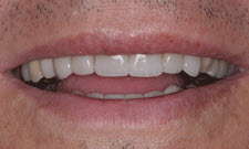 Porcelain Veneers Patient 69323 - After