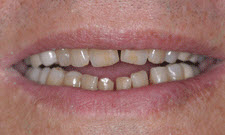 Porcelain Veneers Patient 69323 - Before