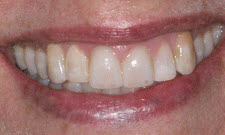 Porcelain Veneers Patient 80200 - After