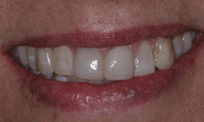 Porcelain Veneers Patient 80200 - Before