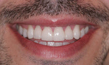 Porcelain Veneers Patient 88180 - After