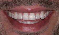 Porcelain Veneers Patient 88180 - Before