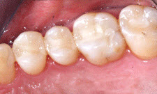 White Fillings Patient 18693 - After