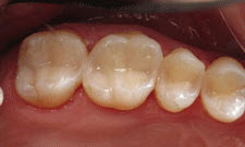 White Fillings Patient 26977 - After