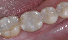 White Fillings Patient 34248 - After