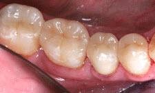 White Fillings Patient 93780 - After