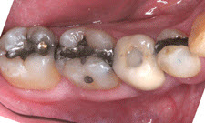 White Fillings Patient 93780 - Before