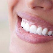 Perfect teeth with porcelain veneers