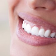 Perfect teeth with porcelain veneers