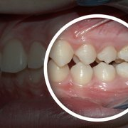 after and before orthodontic treatment