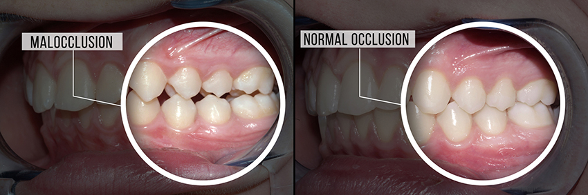 before and after malocclusion