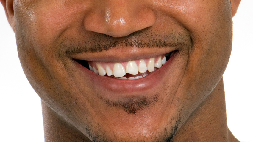 Young man with a chipped tooth
