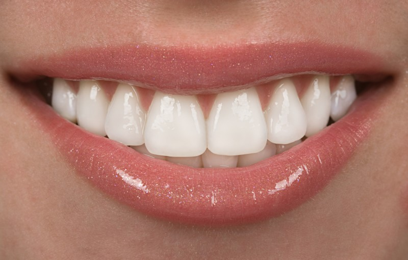 Dental Implant Risks in San Diego